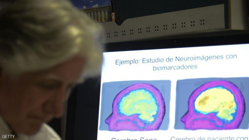 """دراسة: ضغوط الحياة تسبب """"الشيخوخة المبكرة للمخ"""""""